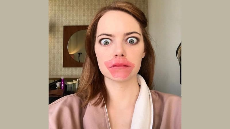 Foto Lucu Artis Hollywood - Emma Stone