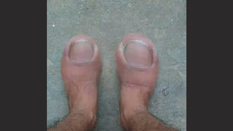 kumpulan foto lucu - jempol kaki